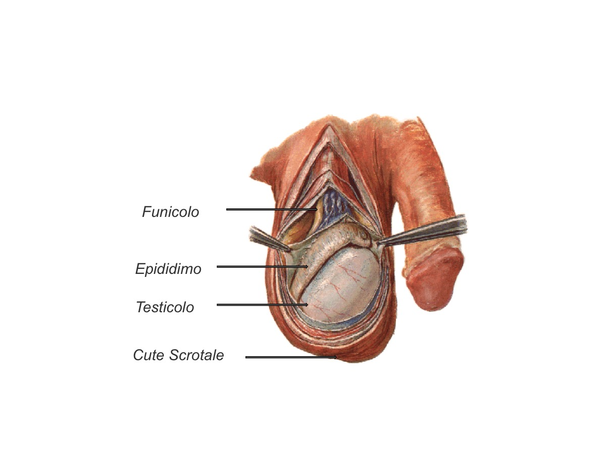 intervento penectomia